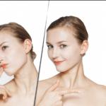 anti aging remedies