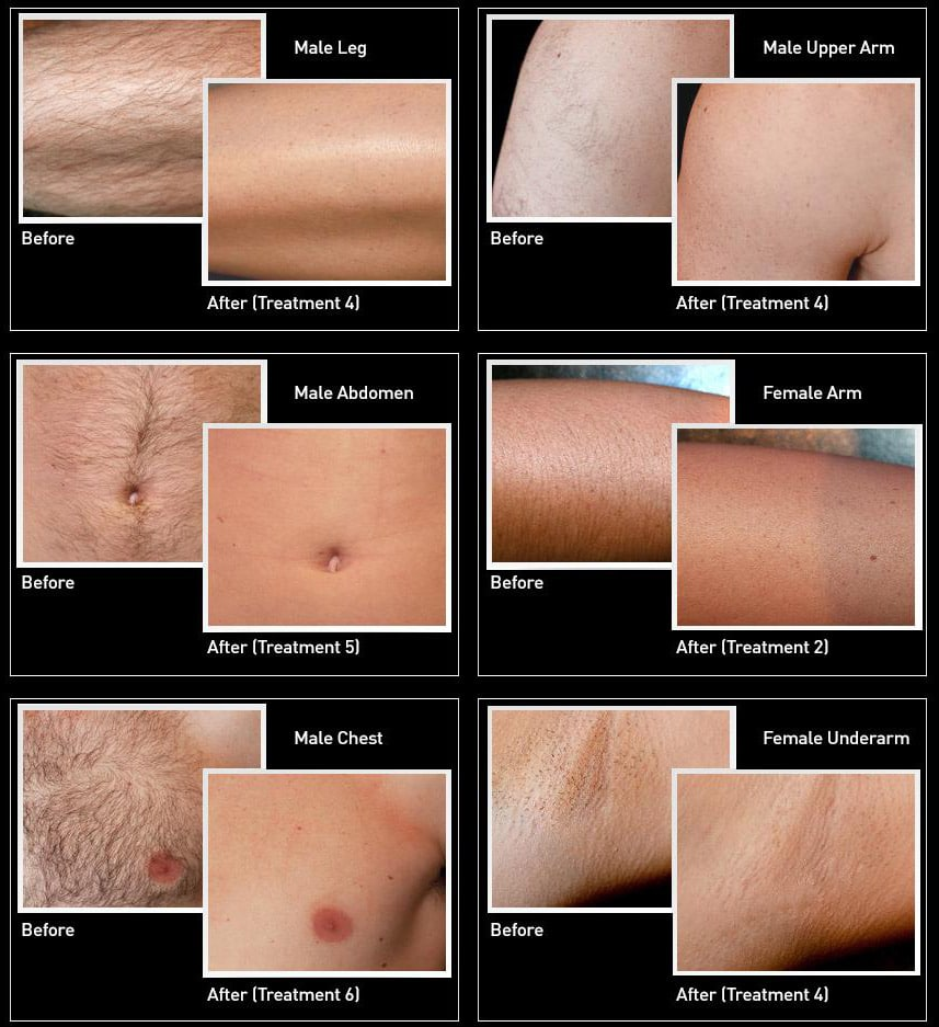 IPL Hair Removal Device, Permanent Light Hair Removal System